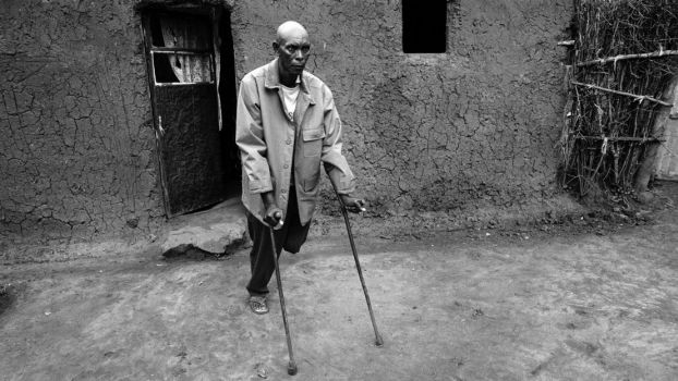 Innocent lost one of his leg during the genocide in Rwanda. Today, he participates to psychosocial support activities conducted by HI.; }}